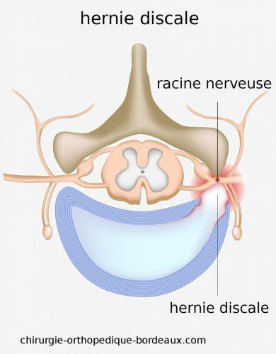 Symptôme hernie discale : Tout ce qu'il faut savoir impérativement pour bien lutter contre une hernie discale