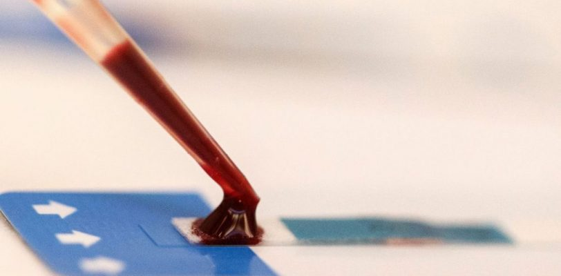 Comment faire le teste du sida ?